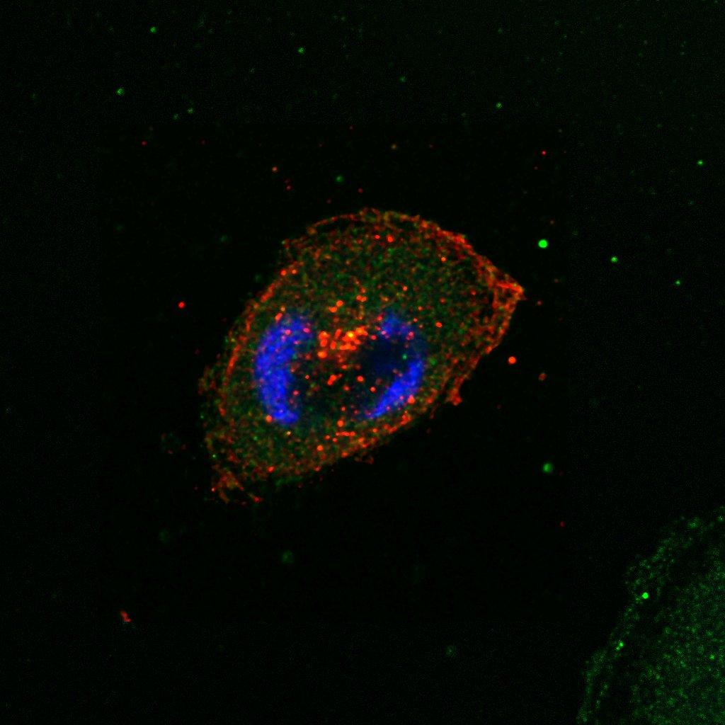 Nom : MDA468-NRT1-2.lif - Series018 Revu.tif (RGB cytoplasme 1) jpeg.jpg Affichages : 512 Taille : 114,8 Ko
