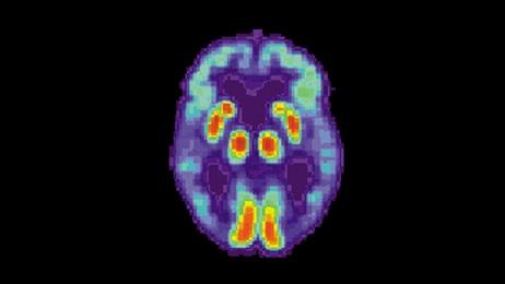 Nom : PET_Alzheimer01.jpg Affichages : 7121 Taille : 16,8 Ko